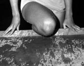L44800 swimmer's knee